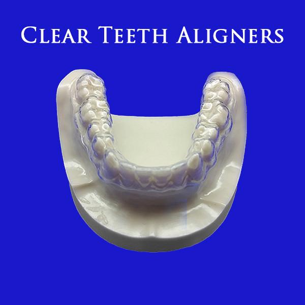 Buy partial dentures teeth retainer hawley retainer teeth alignment evaluation for minor teeth alignment 9400 solutioingenieria Choice Image