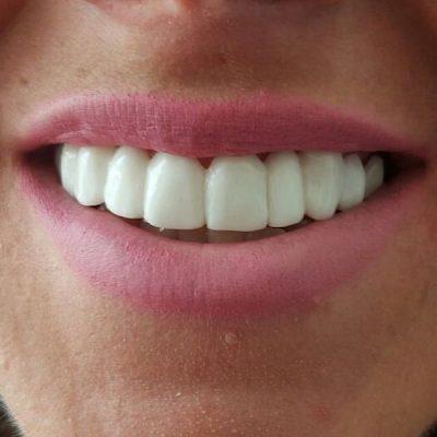 Online Dental Flippers - Buy Dental Partials