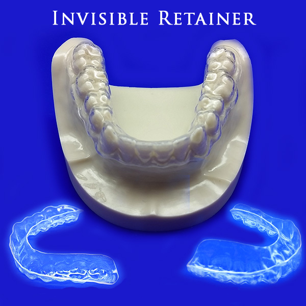 invisible-retainer