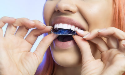 Buy Partial Dentures - Teeth Retainer - Hawley Retainer